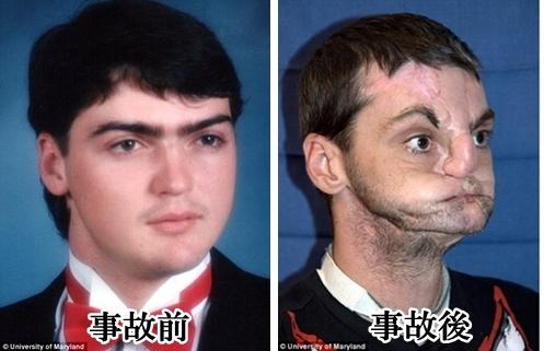 事故前と事故後の写真