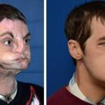 【画像】最も広範囲な顔面移植を受けた患者が順調に回復中、「人生を取り戻せた」