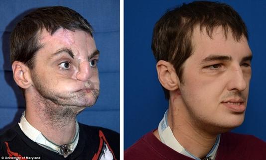 顔面移植手術を受けたリチャードさん
