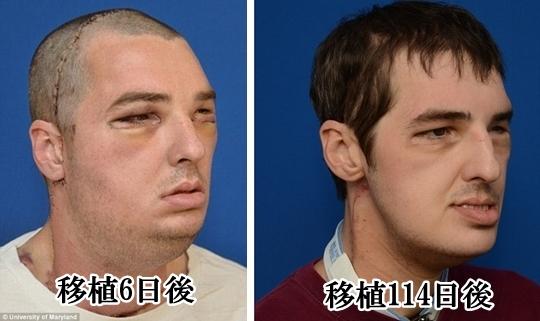 顔面移植手術後 直後と半年後