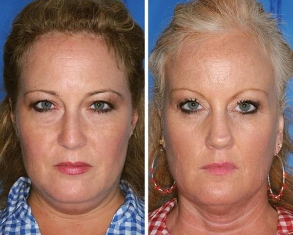 双子 喫煙による老化速度1