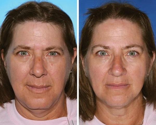 双子 喫煙による老化速度