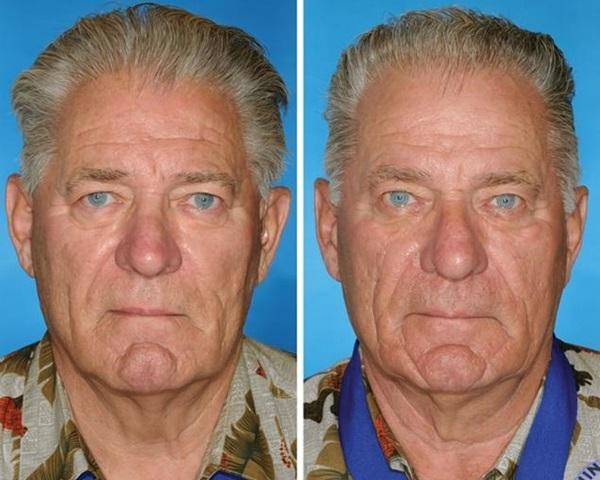 双子 喫煙による老化速度2