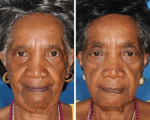 双子 喫煙による老化速度3