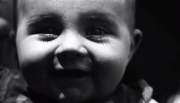 紫外線カメラ 顔 赤ちゃん